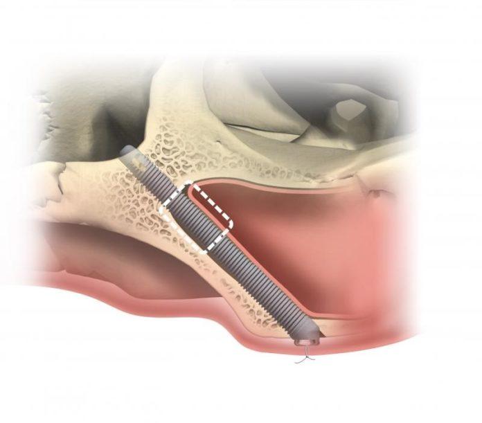 Zygoma Implantate für das Jochbein